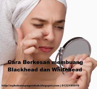 Cara Mudah Hilangkan Blackhead dan Whitehead