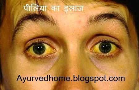 Jaundice Treatment in Hindi , पीलिया का इलाज , Piliya ka ilaj