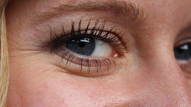 Las máscaras para la persona de los círculos alrededor de los ojos