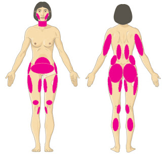 Liposuction body diagram