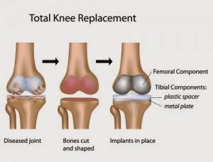 http://orthopedicsindia.com/knee-replacements.html