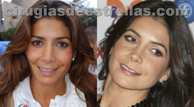 Paty Manterola antes y después