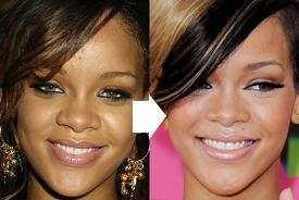 Has Rihanna Had Cosmetic Surgery?