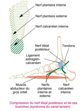 malléole interne douloureuse