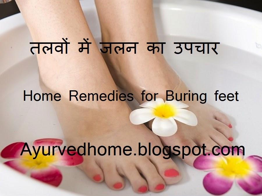 Home Remedies Burning Feet Symptoms , तलवों में जलन का उपचार , Talvo Mein Jalan