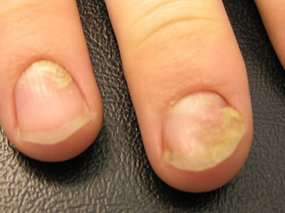 Nail psoriasis: Can treatment or home care help? - Mayo Clinic