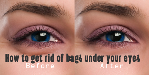how to lose bags under your eyes