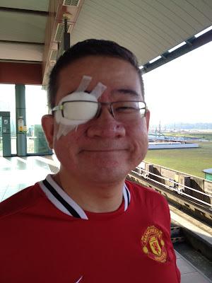 corneal abrasion