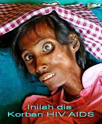 KORBAN HIV AIDS