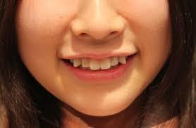 Penyebab dan Cara mengatasi Gigi Gingsul