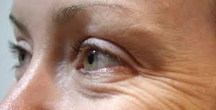 Tips Cara Menghilangkan Kerutan Pada Mata