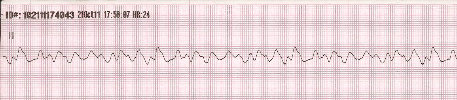 Coarse ventricular fibrillation