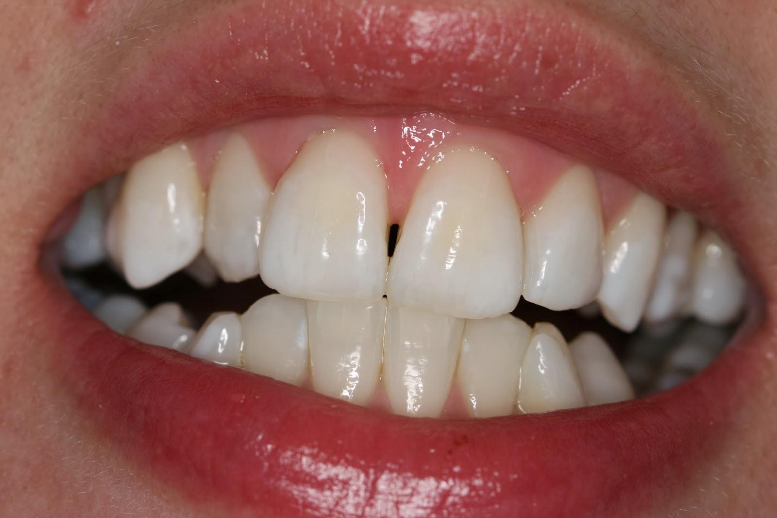 Efekt stomatologii estetycznej - zabiegu wykonywanego w Krakowie