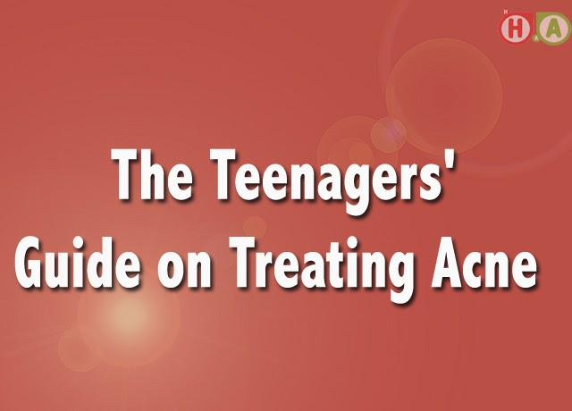 The Teenagers' Guide on Treating Acne