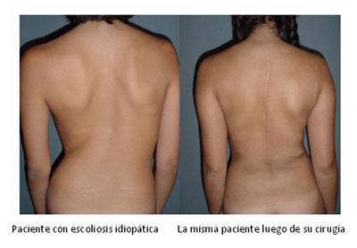 Los ejercicios a la escoliosis de pecho-lumbar