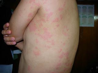 Obat Tradisional Alergi Dingin