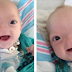 Baby Born Without A Nose Is So Cute, He's Melting People's Heart