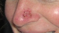 skin cancer of the nose