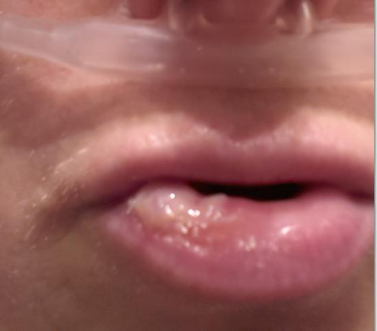 neus dichtbranden pijnlijk