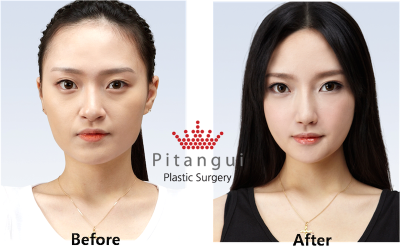should plastic surgery be encouraged Dothan plastic surgery frequently asked questions all patients are encouraged to start a slow, short walking routine on the second postoperative day.