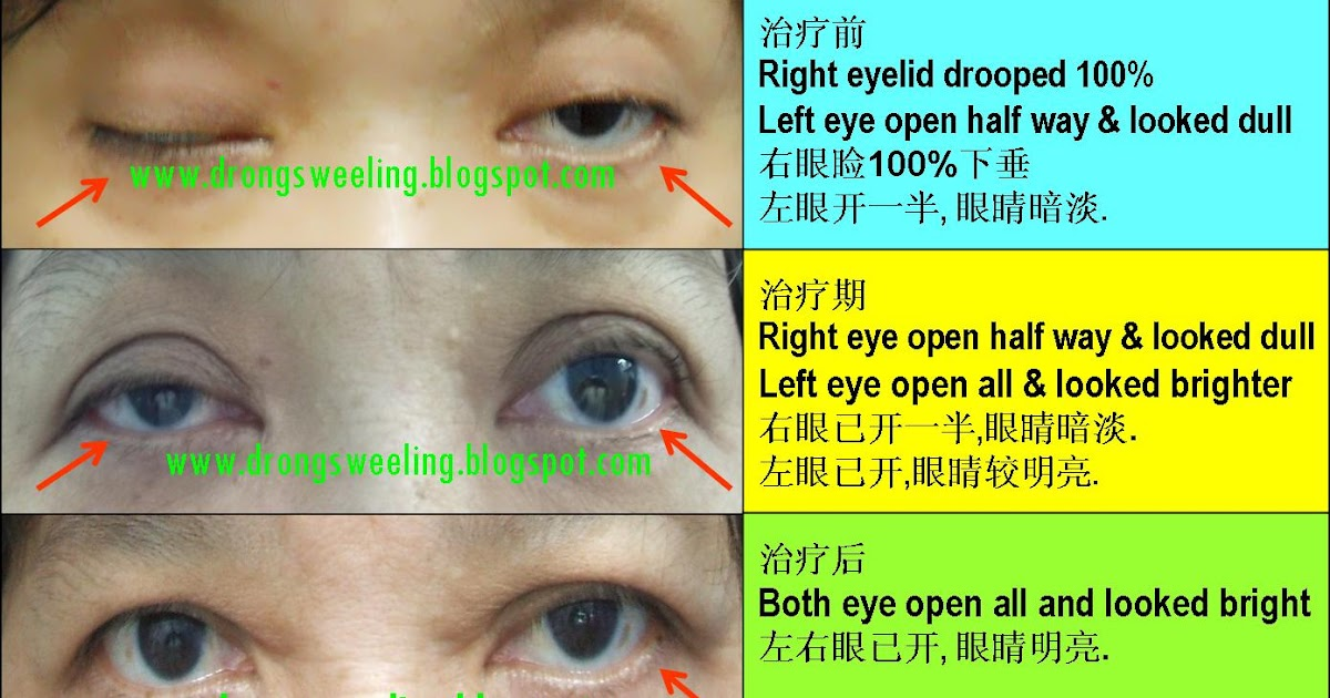 Tcm News Acupuncture Cure Drooping Eyelids 眼睑下垂
