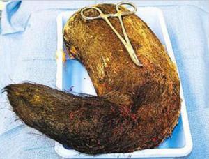Astaga!! 1,8-kilo Rambut Ditemukan Di Perut Seorang Gadis [ www.BlogApaAja.com ]