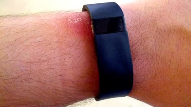 Photo Source: http://www.medicineandtechnology.com/2014/01/some-fitbit-force-users-reporting-rash.html