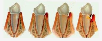 remedios caseros para periodontitis