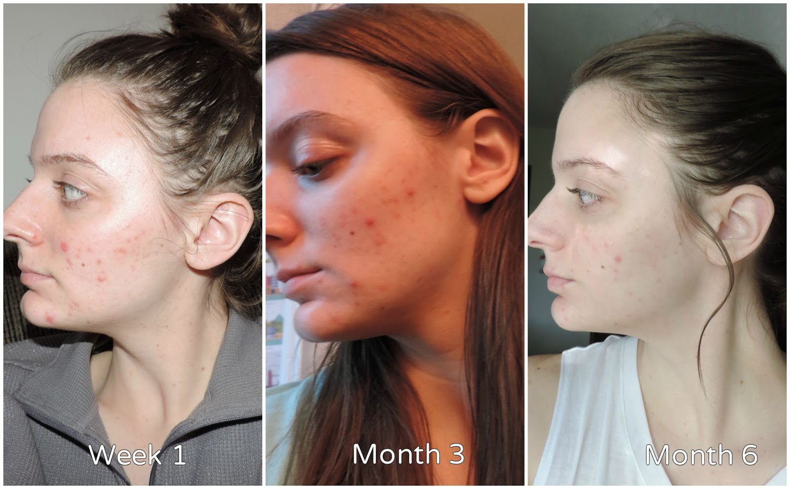 Tretinoin after 4 months : Bactrim quelle famille