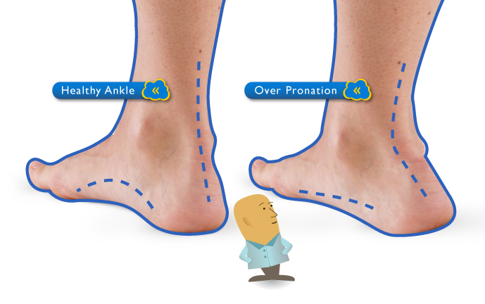 Lesley Mero: Foot Pronation and the Figure Skater Ankle Pronation Surgery