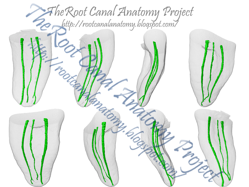 The Root Canal Anatomy Project Middle Mesial Canal Mandibular