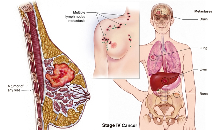 Test Predict Breast Cancer Metastasis To Brain Minds Of Malady