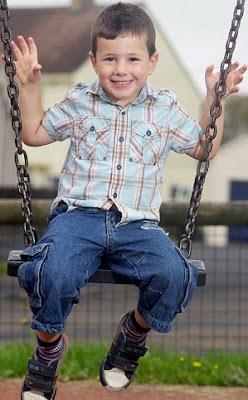 英5歲男童 小龍人