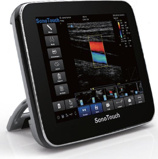 Laptop Ultrasound Scanners: Portable Power Doppler Color
