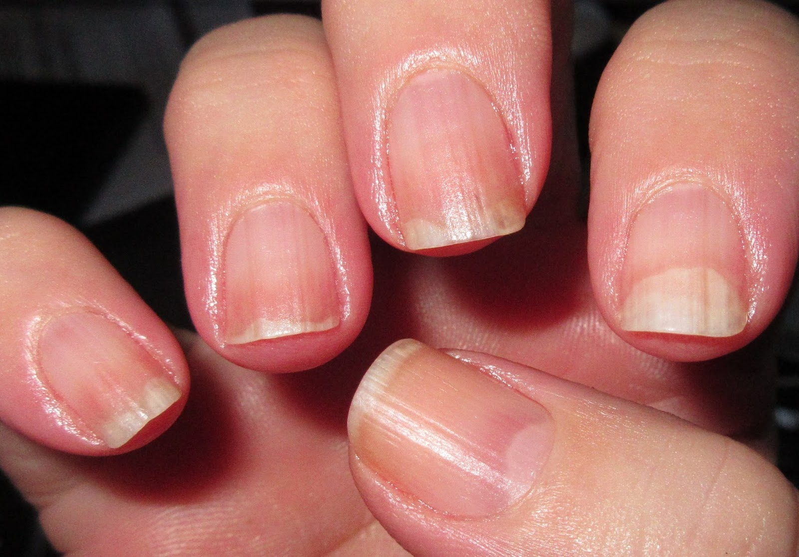 Ten Penny Nails: UPdate: Naked Nails and Rosehip Seed Oil