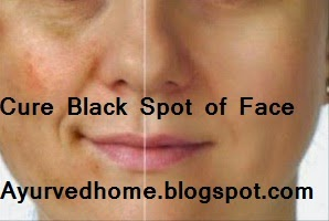 Spots and Fine Lines on Face