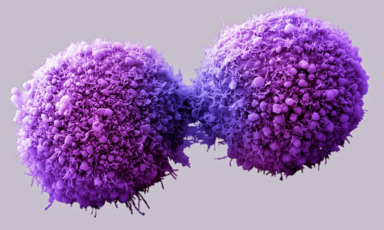 Researchers Uncover Key Cancer-Promoting Gene