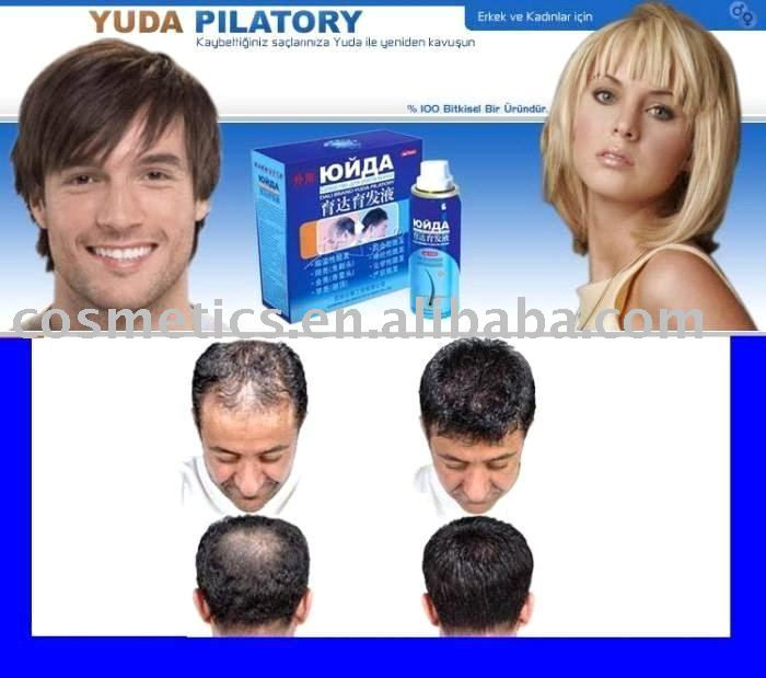 hair loss cure