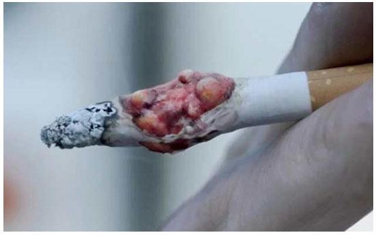 اعلان بريطاني قوي لحملة مكافحة التدخين