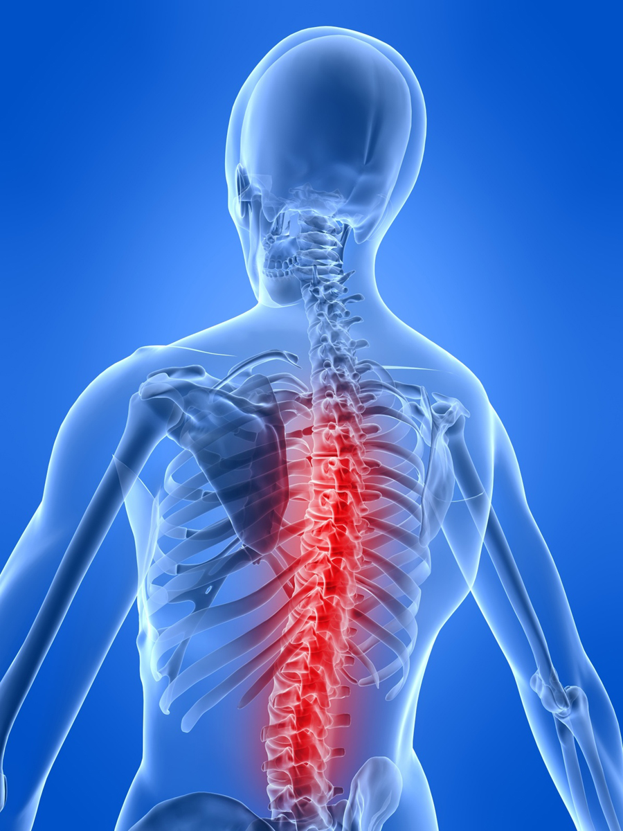 steroids after spinal surgery