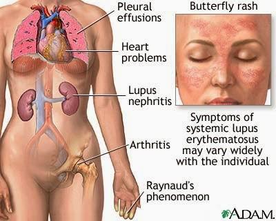 Cara Cepat Mengobati Penyakit Lupus