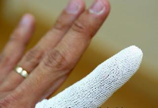 plester perban eko gips untuk jari
