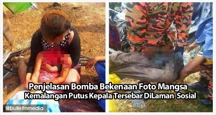 Gambar Kemalangan Putus Kepala, Tersebar Di Laman Sosial Itu Bukan..