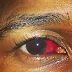 Usher gets into a fight inside Miami's hotspot E11even and shared a pic of his bloody red eye on his instagram page