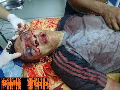 Homem mata assaltante após tentativa de assalto em Chapadinha