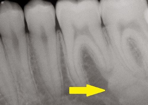 world of dentistry ::: idiopathic osteosclerosis, Skeleton