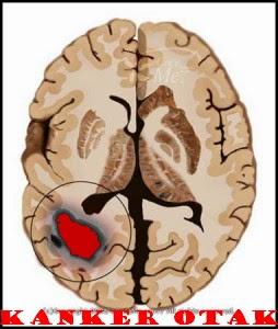 obat herbal kanker otak