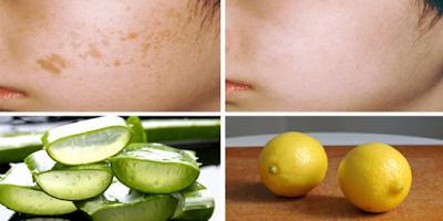 4 Obat Herbal Untuk Hilangkan Flek hitam di Wajah