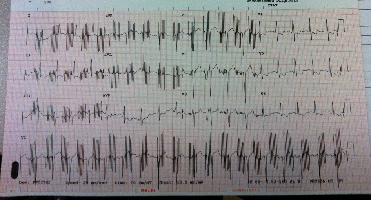Unusual-ECG-EKG-Pattern