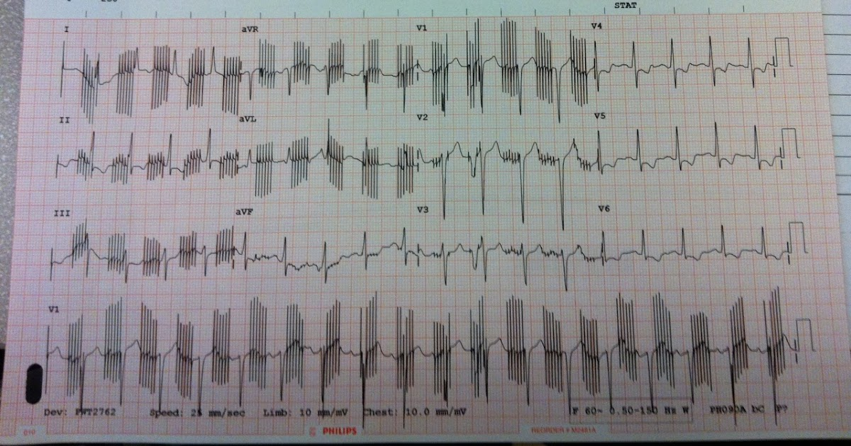 the only ekg book you ll ever need 8 pdf